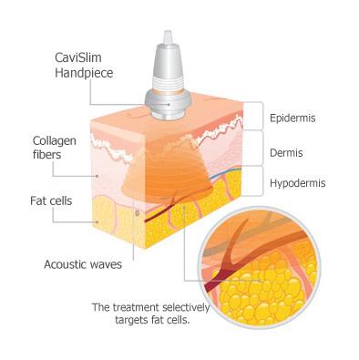 Zsírbontás kavitációval: CaviSlim alakformáló kezelés